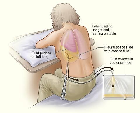 Thoracentesis Procedure